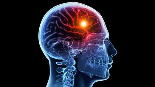 درمان جدید سکته مغزی در ایران