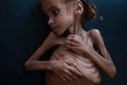 عکس | مرگ دختر ۷ سالهای که تصویرش جهان را تکان داد