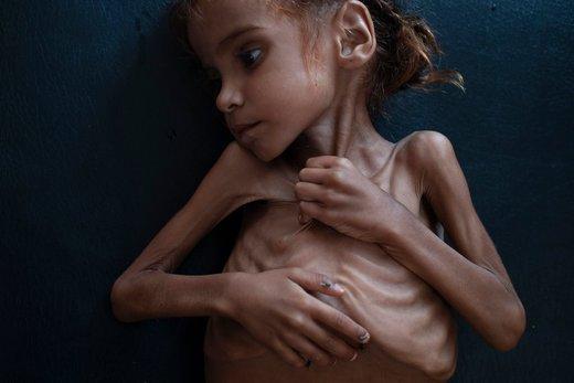عکس   مرگ دختر ۷ سالهای که تصویرش جهان را تکان داد