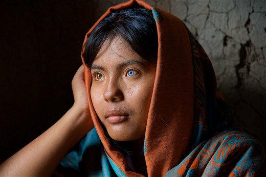 رنگ متفاوت دو چشم ساپا، دختر قبیلهای در ویتنام