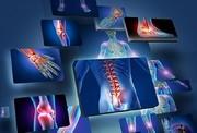 دردهای استخوانی مقاوم به دارو را جدی بگیرید