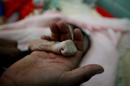 پدر یمنی دست دختر چهار ماهه خود را گرفته است. این نوزاد به دلیل سوءتغذیه در بیمارستان السابین شهر صنعا جان باخت