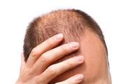 رشد دوباره مو روی پوست آسیبدیده