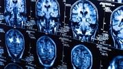 کرونا اثراتی شبیه آلزایمر و پارکینسون روی مغز دارد
