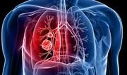 علائم سرطان ریه را اینجا ببینید