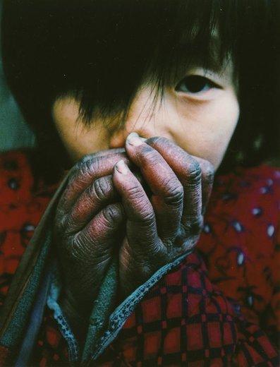 یک دختر جوان در زمستان دستش را گرم می کند، پدر این دختر مبتلا به ایدز است، او از 5 کودک و والدین سالخورده اش مراقبت می کند