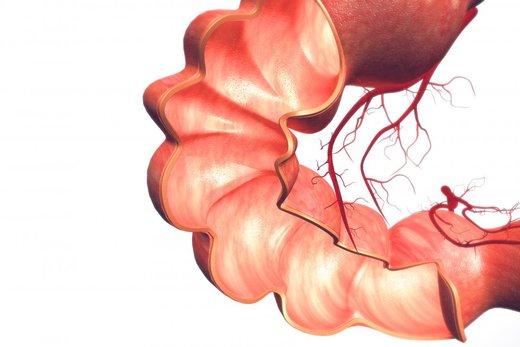 التهاب روده خطر ابتلا به سرطان پروستات را ۵ برابر میکند
