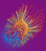 قرصهای قند و فشار سلولهای سرطانی را میکشند