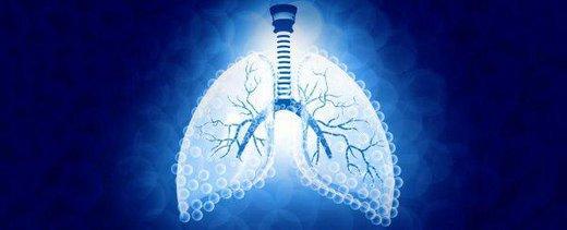 با تاثیر بلندمدت ویروس کرونا بر ریه آشنا شوید