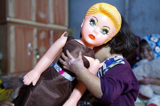 کودکان پروانه ای ایران، قربانی تحریم ها و فساد