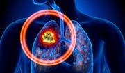 نقش فوتونهای زیستی و نانوذرات در پیشبینی و درمان سرطان