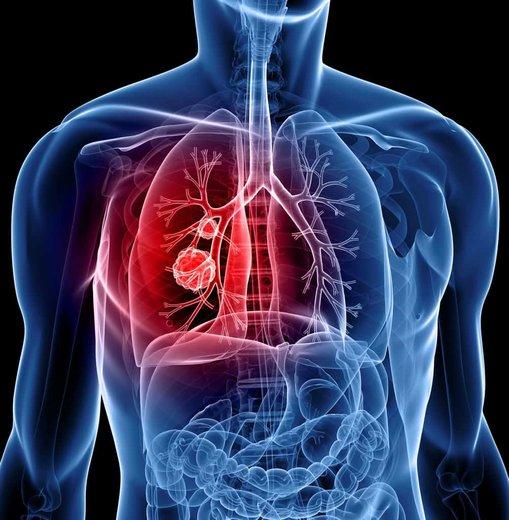 همه آنچه باید دربارهی سرطان ریه باید بدانید