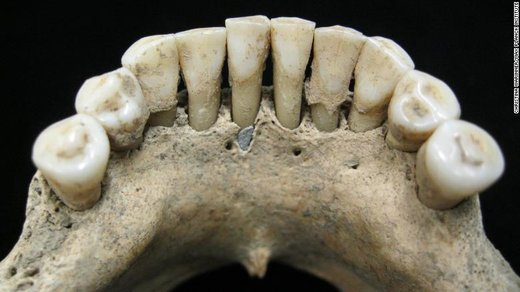 کشف سنگ لاجورد قیمتی در دهان زن هزارساله آلمانی / عکس