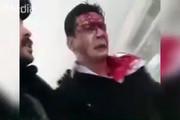 فیلم | نجات تنها بازمانده حادثه بوئینگ ۷۰۷ | اولین لحظات بعد از سقوط را ببینید