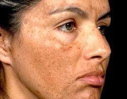 تغییرات رنگ پوست نشانه سرطان است