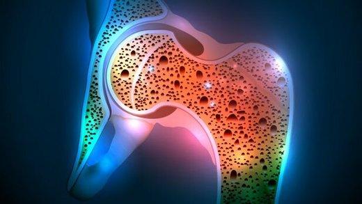 شناسایی راهی جدید برای درمان پوکی استخوان
