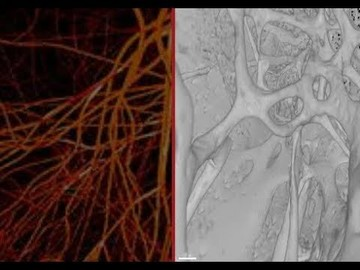 شناسایی یک رگ خونی جدید در استخوان