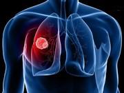 تشخیص سرطان ریه با کمک حسگری از جنس گرافین