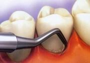 ۱۰ ماده غذایی نابود کننده دندان را بشناسید