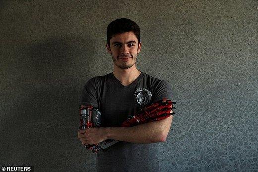 نوجوان معلول اروپایی که برای خود دست رباتیک ساخت
