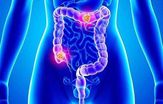دفع خون در ادرار و مدفوع را جدی بگیرید/ عاملی که شایعترین علامت سرطان است