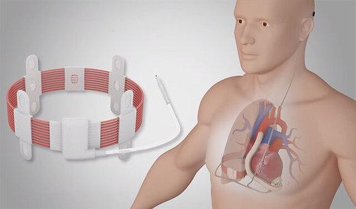 ایمپلنت نخستین پمپ قلب بیسیم جهان با موفقیت انجام شد