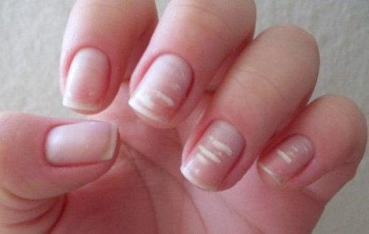 چرا روی ناخن لکههای سفید ایجاد میشود و راه درمان آن چیست؟