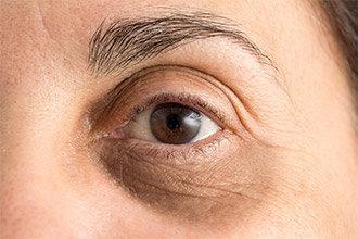 علتها و روشهای درمان سیاهی دور چشم