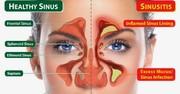راهکارهایی برای درمان «سینوزیت»
