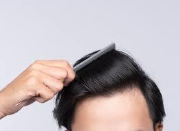 ۵ غذا که برای رشد مو مفید است