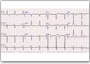 بیماری قلبی,سهل انگاری کادر پزشکی