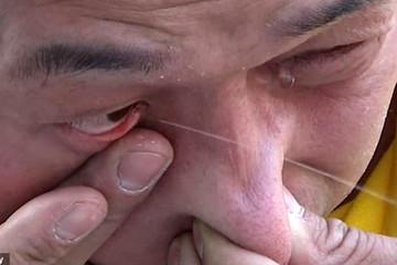 فیلم | مرد چینی که آب از چشمانش فواره میکند!