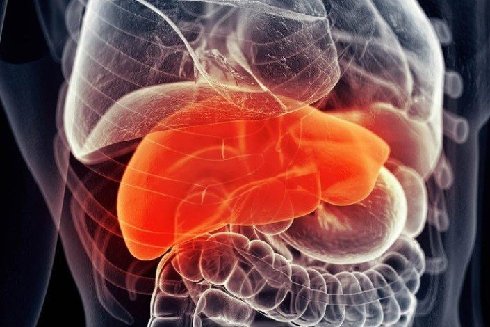 کبدچرب؛ عارضهای که میتواند منجر به مرگ شود/ نسخههای طب سنتی برای درمان کبدچرب