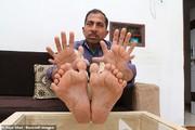 تصاویر   مرد هندی که ۲۸ انگشت دارد!
