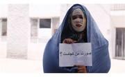 حضور کارگردان فیلم «لانتوری» و جمعی از قربانیان اسید پاشی در صحن مجلس