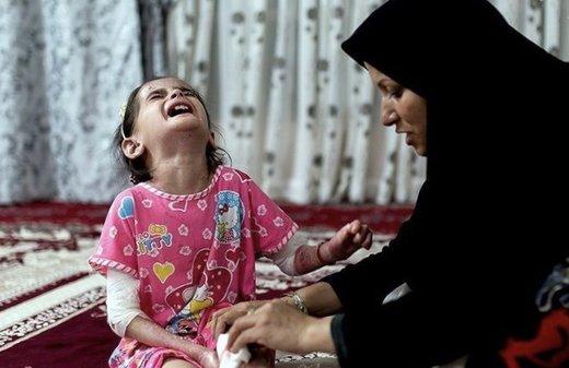 تهدید جان کودکان «پروانهای» توسط آمریکا و جای خالی مدعیان حقوق بشر