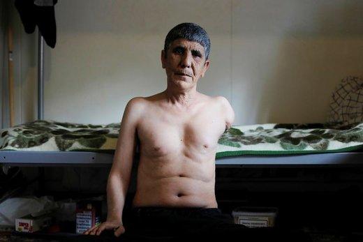 کریم عزیزی، کرد 55 ساله ایرانی، جراحت خود را در تصویر نشان میدهد، او ادعا میکند که بر اثر انفجار بمب در نزدیکیاش، بازوی خود را از دست داده است، این مرد در مرکز پناهجویان در یوتلاند دانمارک به سر میبرد