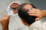 علت افزایش ریزش مو در تابستان چیست؟