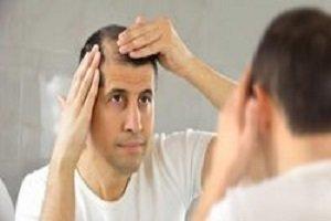 علل پنهان و روشهای درمان ریزش مو