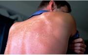 ۴ نشانه مسمومیت خورشیدی را بشناسید