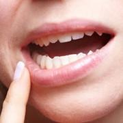۷ درمان خانگی برای زخمهای دهان