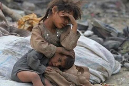 موسسه آمریکایی میزان تلفات جنگ یمن را اعلام کرد