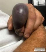 نیش مار، انگشت یک مرد را چند برابر کرد/ عکس