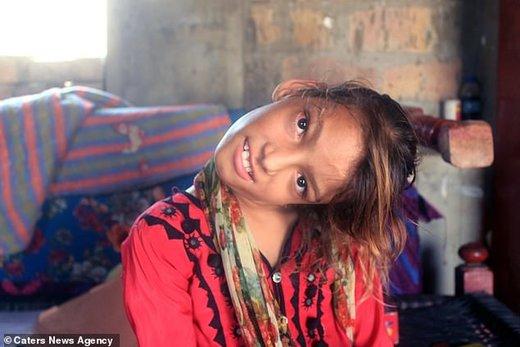 «کج گردنی»، اختلال عجیب دختر ۱۱ ساله پاکستانی/ تصاویر