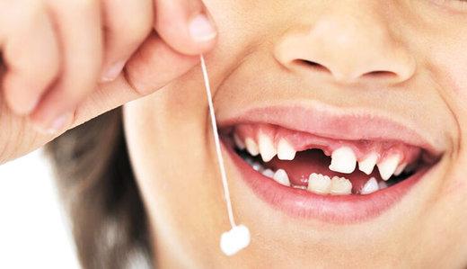 دندانهای شیری را پیش از موعد نکشید