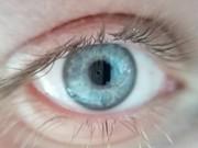 امید به بازگشت بینایی در قربانیانِ سوختگی شیمیایی