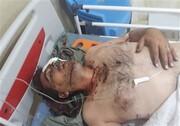 یک محیطبان مورد اصابت ۲۵ ساچمه شکارچیان قرار گرفت