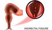 پیشگیری از بیماریهای آنورکتال