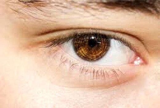 پُف صبحگاهی چشمها چطور رفع میشود؟