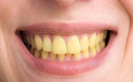 ساعت ۱۵/ وقتی فلوراید اضافی آب، سلامت دندانهایتان را هدف قرار میدهد/ فلوئوروزیس دندانی، زیبایی دندانهایتان را از بین میبرد